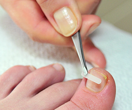 Исправить ногти при помощи пластины