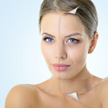 Упругость кожи и плазмолифтинг