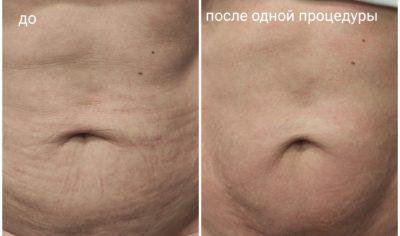 Живот похудение